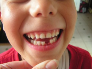Yesterday Jed lost his first tooth.